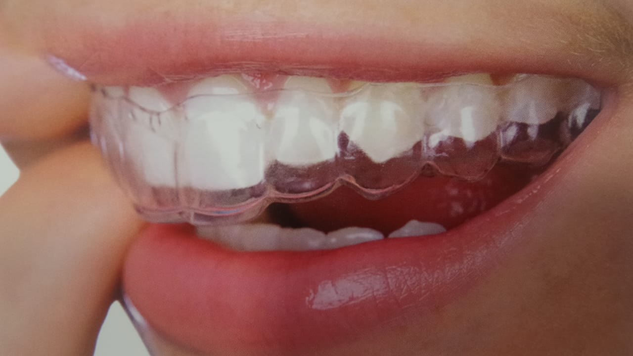 Διαφανής νάρθηκας οδοντοστοιχίας