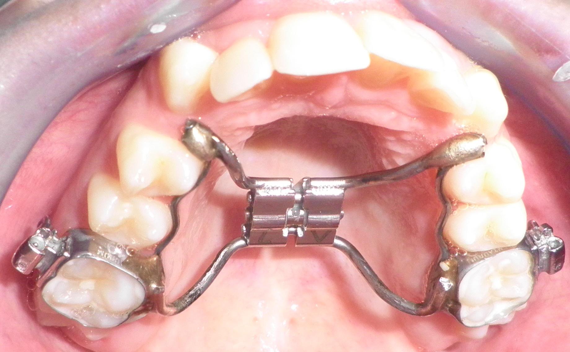 Οδοντοστοιχία με σταθερό μηχανισμό διεύρυνσης γνάθου